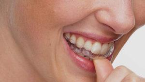 Ortodoncia invisible en Alcorcón y Móstoles Invisalign - Clínica Stoma - Cuando se ven los resultados de Invisalign