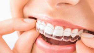 ¿Cuánto cuesta Invisalign? - Clínica dental Stoma en Móstoles y Alcorcón - 11