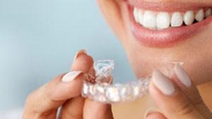 ¿Cuánto cuesta Invisalign? - Clínica dental Stoma en Móstoles y Alcorcón - 4