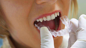 Ortodoncia invisible en Alcorcón y Móstoles Invisalign - Clínica Stoma - Qué problemas tiene Invisalign